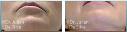 Female chin, before and after Skin and Laser Resurfacing treatment, chin, front view, patient 5