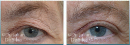 Female eyes, before and after Skin and Laser Resurfacing treatment, eyes, front view, patient 6