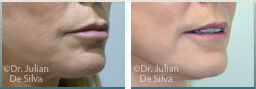 Female face, before and after Skin and Laser Resurfacing treatment, chin, side view, patient 7