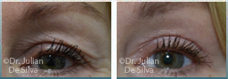 Female eyes, before and after Skin and Laser Resurfacing treatment, eyes, front view, patient 8