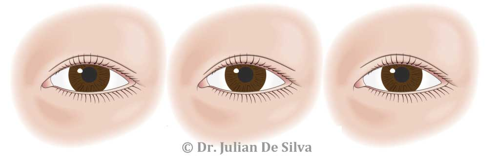 Asian eyelid variations image