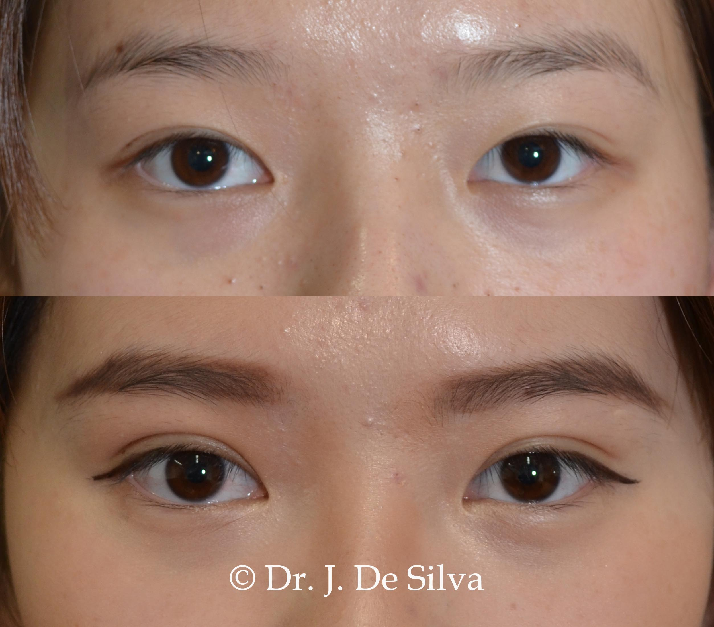 Asian Eyelid Surgery London | Asian Blepharoplasty West London