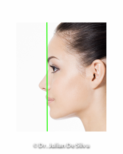 image female after Chin Augmentation