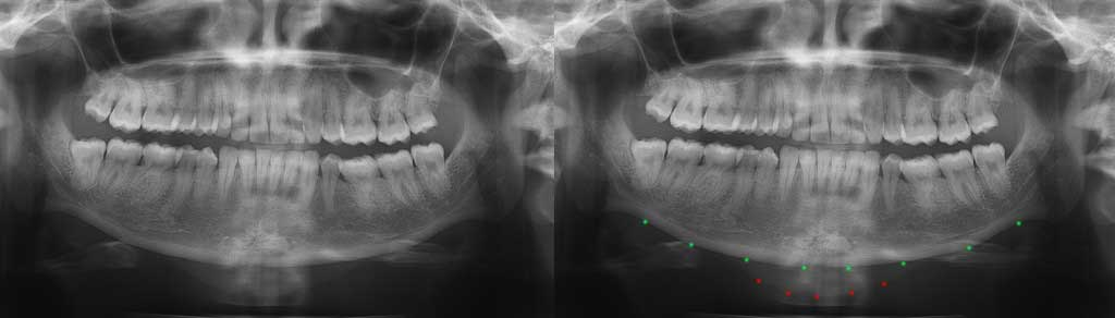 Displaced Chin Implant with and without markings