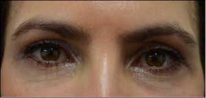Female eyelid, After Revision Plastic Surgery, front view, patient 2