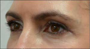 Female eyelid, After Revision Plastic Surgery, oblique view, patient 2