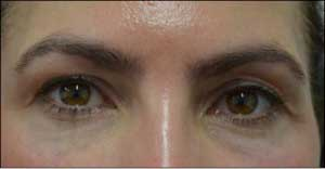 Female eyelid, Before Revision Plastic Surgery, front view, patient 2
