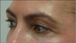 Female eyelid, Before Revision Plastic Surgery, oblique view, patient 2