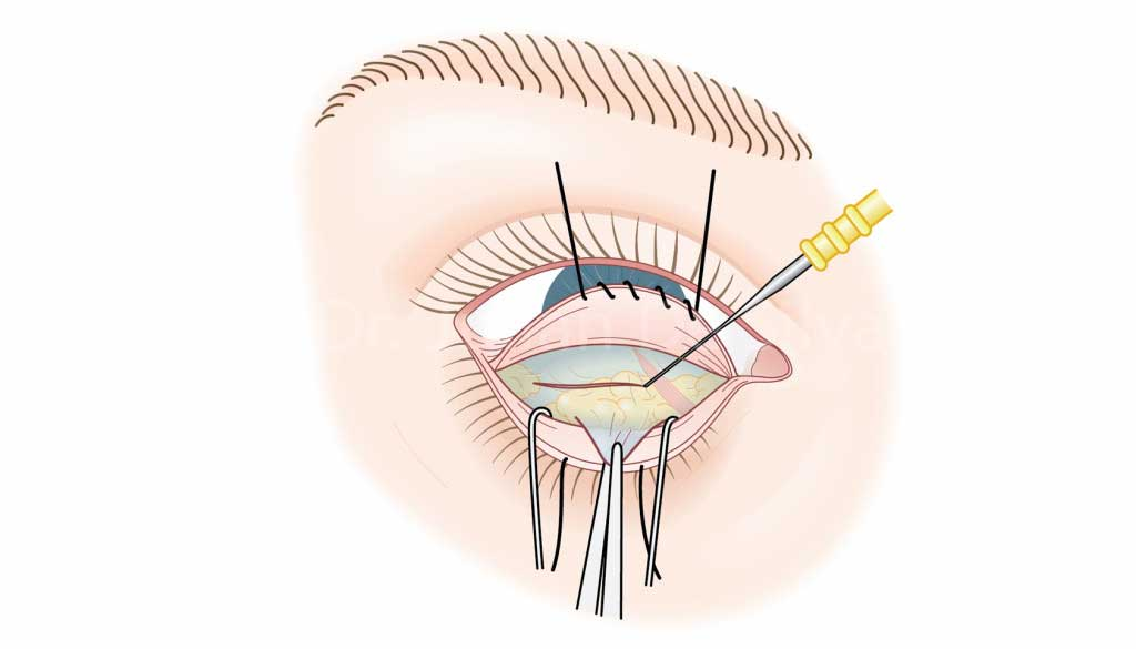 Lower Blepharoplasty -How it is done?