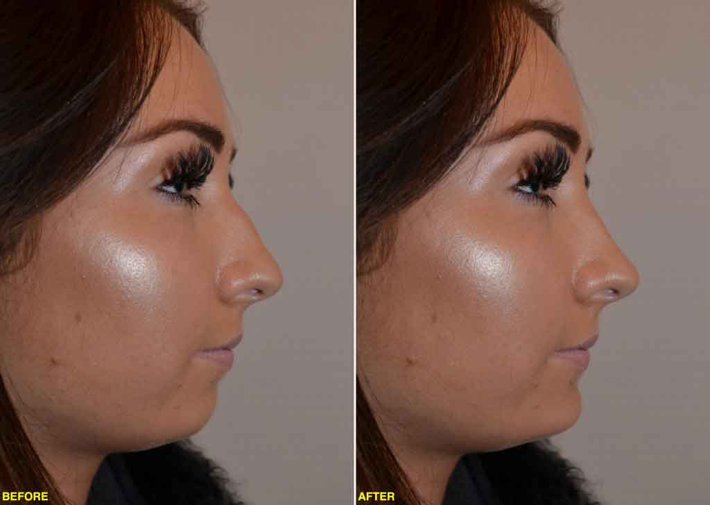 Woman's face, Before and After 2D/3D Imaging for Rhinoplasty and Chin Implant, nose, chin, female patient, right side view