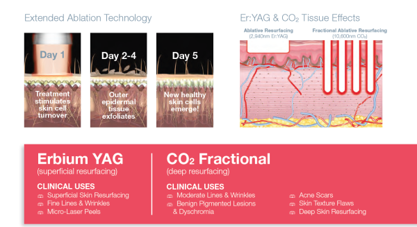 Extended Ablation Technology