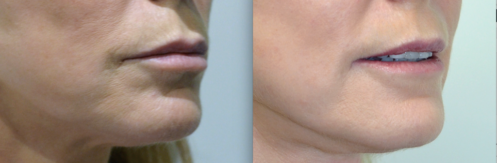 Female face before and After laser resurfacing treatment, oblique view