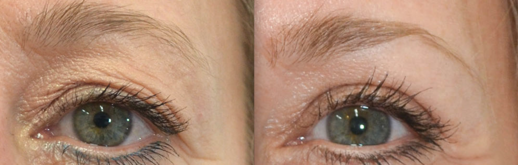 Female eyes before and After laser resurfacing treatment, front view