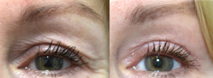Female eyes before and After laser resurfacing treatment, front view, patient 2