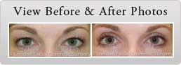 Female face, before and after Sedation eyelid surgery treatment