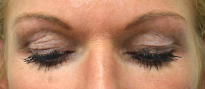 Example patient photo for Internet Consultation about Eyelids - Looking Down