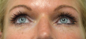 Example patient photo for Internet Consultation about Eyelids - Looking Up