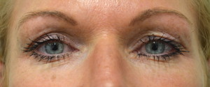 Example patient photo for Internet Consultation about Eyelids - Looking Straight Ahead