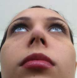 Example patient photo for Internet Consultation - Base view of the nose with face included (Bottom of the nose, facing upward)