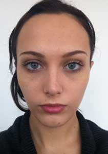 Example patient photo for Internet Consultation - Front view (Facing forward)