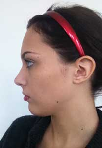 Example patient photo for Internet Consultation - Both left Side views (Profile view)