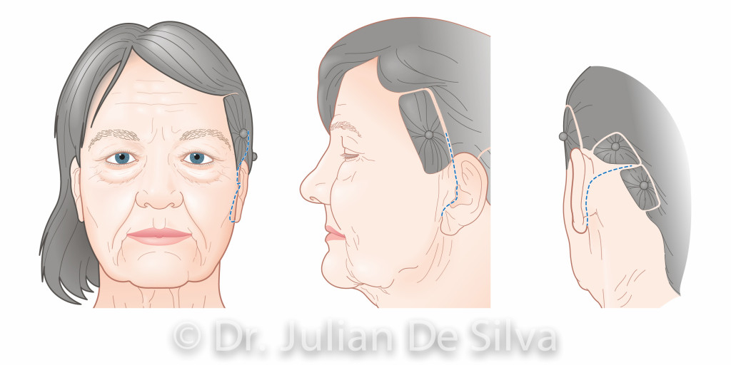Facelift Surgery.Images taken from Dr. Julian De Silva's forthcoming book on Facial Cosmetic. Surgery area around ear
