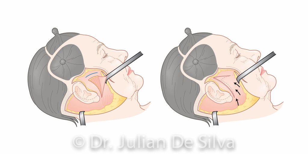 Facelift Surgery.Images taken from Dr. Julian De Silva's forthcoming book on Facial Cosmetic. Surgery area around ear, cheek, side view, operation images