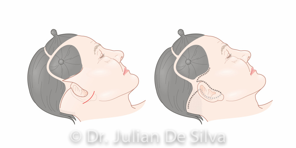 Facelift Surgery.Images taken from Dr. Julian De Silva's forthcoming book on Facial Cosmetic. Surgery area around ear, cheek, side view, After treatment images