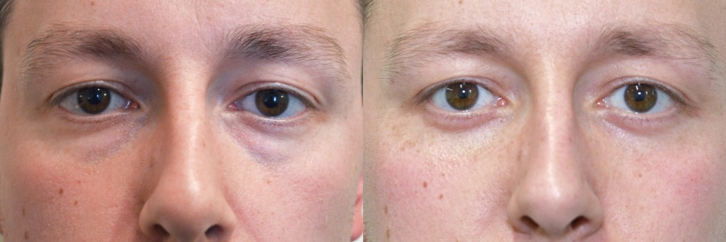 Patient face, before and after Blepharoplasty, Lower Blepharoplasty Scar at 6weeks, patient 2