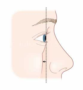 Fig 1. Surface Anatomy Eyes - Caucasian woman