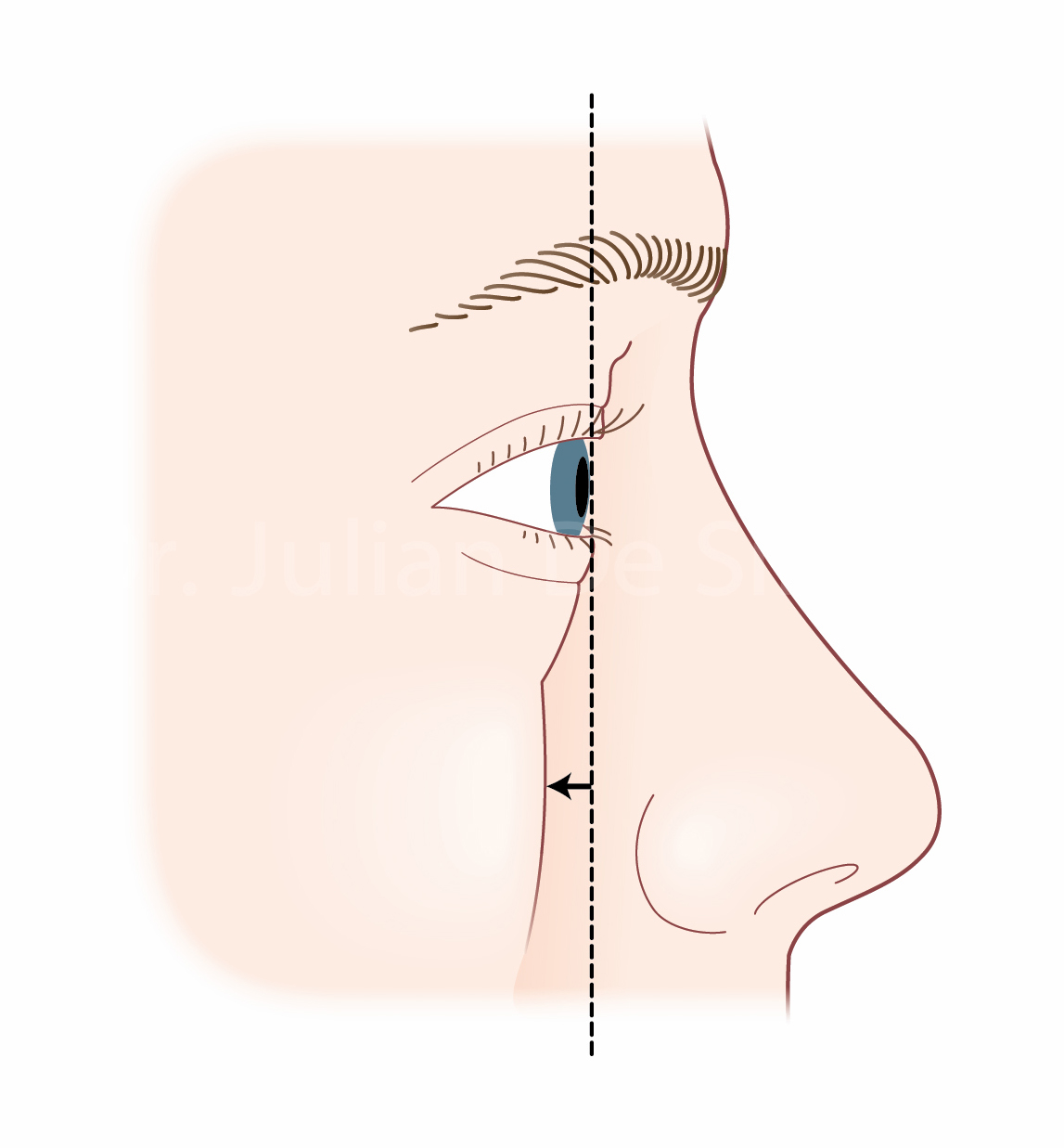 Blepharoplasty Frequently Asked Questions and Answers