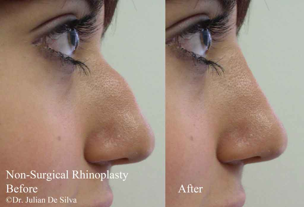 Female face, Before and After Nose Re-shaping (Rhinoplasty) Treatment, nose, right side view