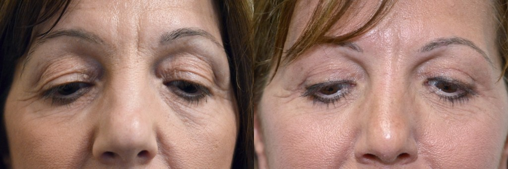 Female face, before and after Blepharoplasty, Upper Blepharoplasty Scar at 6weeks, patient 1