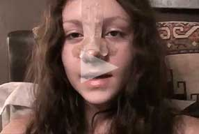 female patient experience after nose re-shaping rhinoplasty  -  video