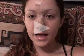 video female patient nose re-shaping post-op experience - small banner