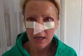 Watch Video Testimonial: female patient, Blepharoplasty Eyelid Lift Diary Day 1 After Surgery