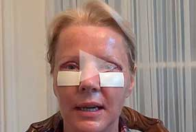 Watch Video Testimonial: female patient, Blepharoplasty Eyelid Lift Diary Day 2 After Surgery