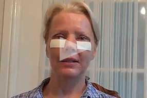 Watch Video Testimonial: female patient, Blepharoplasty Eyelid Lift Diary Day 3 After Surgery