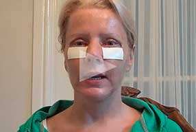 Watch Video Testimonial: female patient, Blepharoplasty Eyelid Lift Diary Day 4 After Surgery