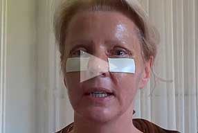 Watch Video Testimonial: female patient, Blepharoplasty Eyelid Lift Diary Day 5 After Surgery