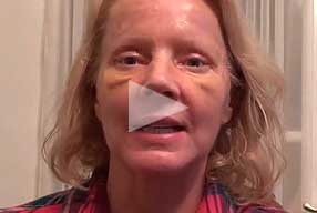 Watch Video Testimonial: female patient, Blepharoplasty Eyelid Lift Diary Day 7 After Surgery