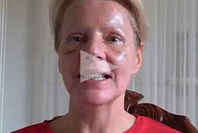 Watch Video Testimonial: female patient, Blepharoplasty Eyelid Lift Diary Day 8 After Surgery