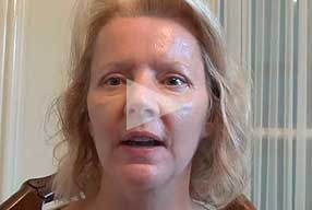 Watch Video Testimonial: female patient, Blepharoplasty Eyelid Lift Diary Day 11 After Surgery