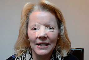 Watch Video Testimonial: female patient, Blepharoplasty Eyelid Lift Diary 8 weeks After Surgery