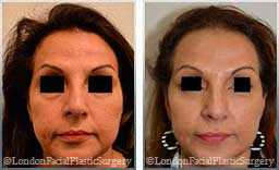 Female face, Before and After Facelift Treatment, jaw and neckline, front view, patient 5