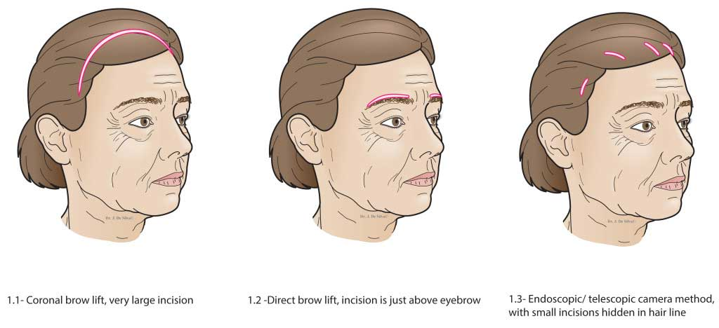 Brow lift Figures-Coronal, Direct, Endoscopic