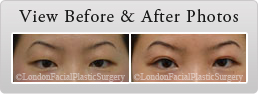 Female face, Before and After Asian Blepharoplasty Treatment, eyes, patient 1