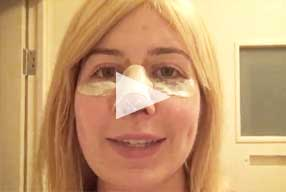 video Post-Op Revision Rhinoplasty female patient Diary