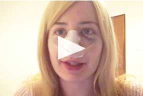 video same day surgery - revision rhinoplasty