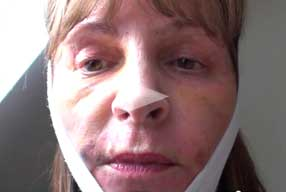 Facelift & Neck Lift Video Diary Day 6 After Surgery